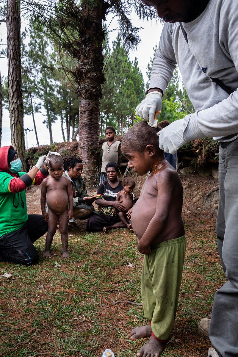 Behandeling huidaandoening Nduga Papua