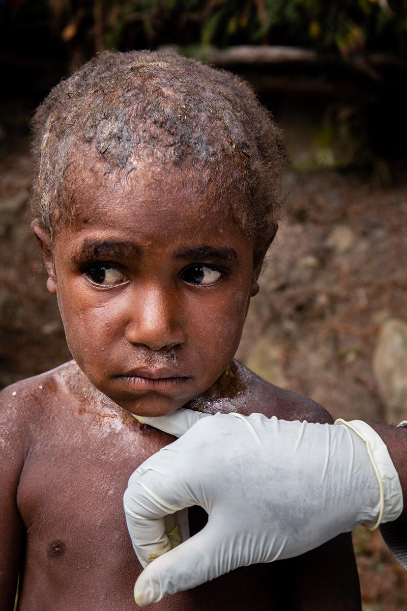 Huidaandoening Nduga Papua